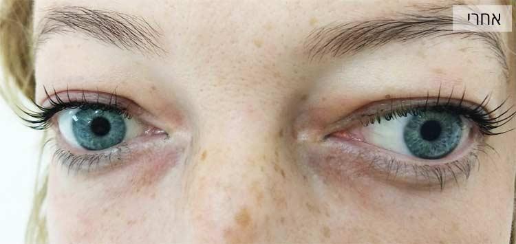 הרמת ריסים - אחרי הטיפול