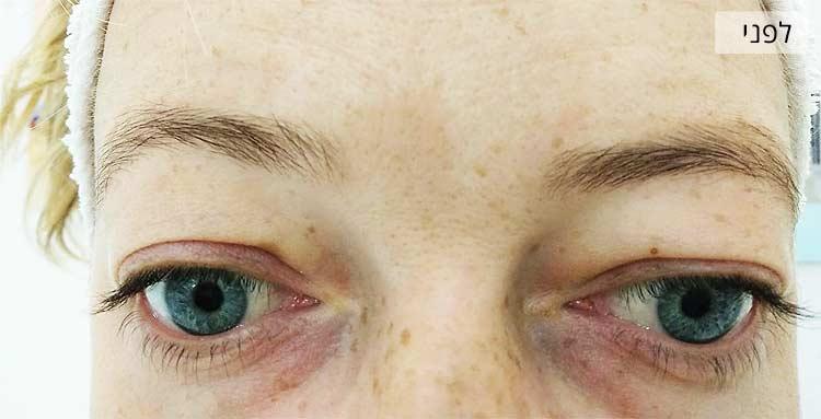 הרמת ריסים - תמונה לפני הטיפול